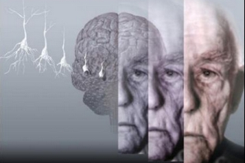 Альцгеймер – симптомы и лечение